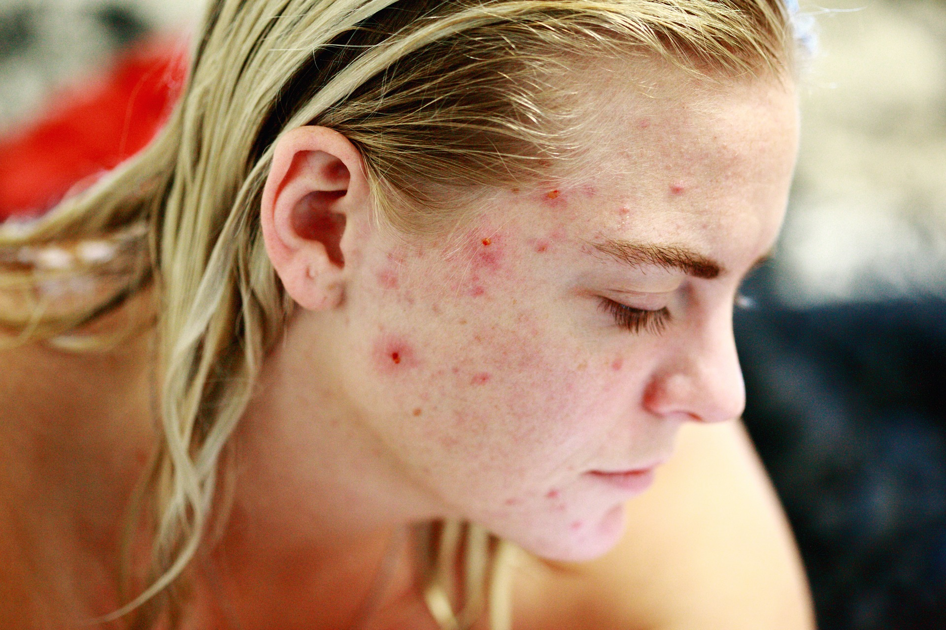 How to Naturally Get Rid of Acne Scars